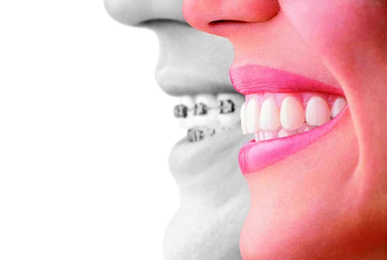Invisalign: A more sophisticated approach to braces