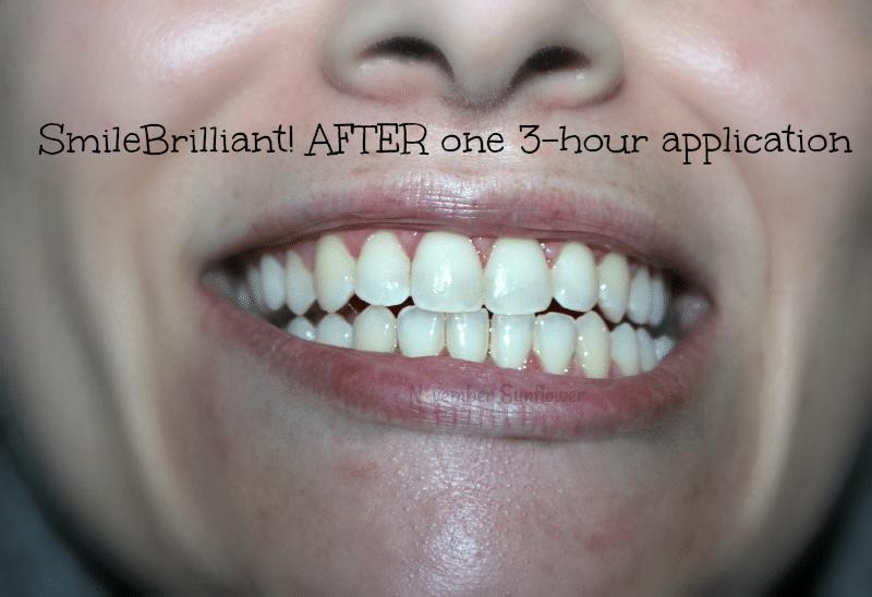 teeth whitening journey #smilebrilliant #sponsored