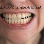 SmileBrilliant! teeth whitening journey #sponsored #smilebrilliant