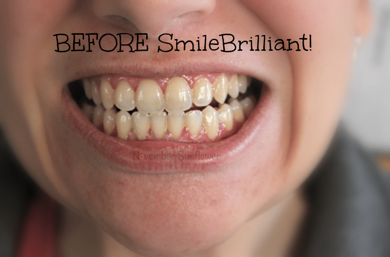 SmileBrilliant! teeth whitening journey #sponsored #smilebrilliant