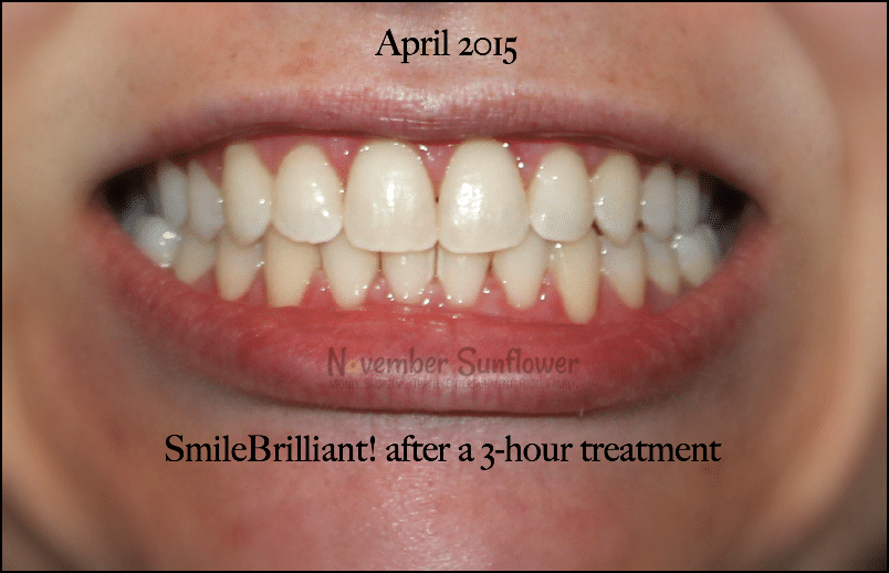 SmileBrilliant teeth whitening journey continues in April 2015 #smilebrilliant #teethwhitening #ad #beautyreview