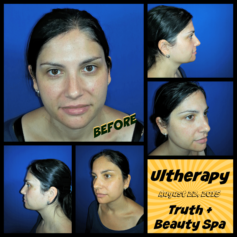 Ultherapy BEFORE at Truth + Beauty Spa