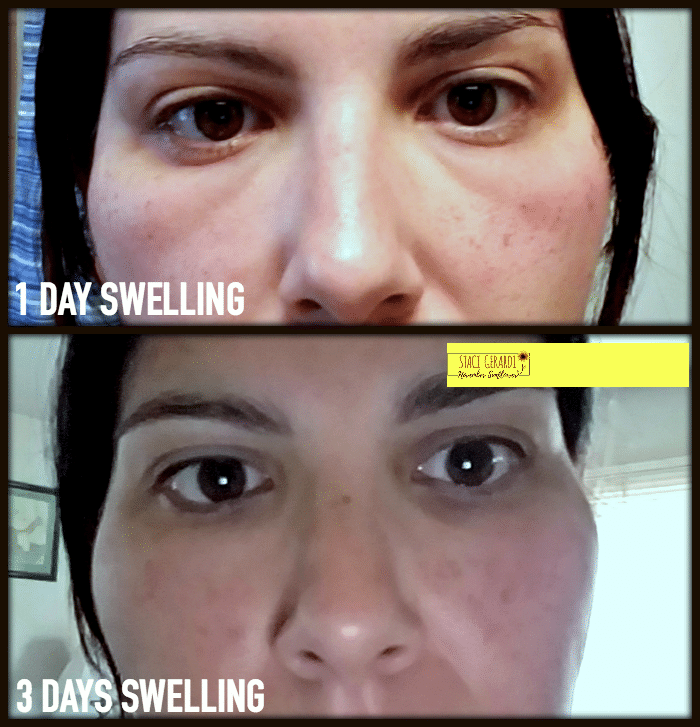 IPL Swelling Progression