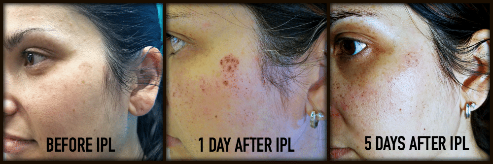 Intense Pulsed Light Progression - IPL