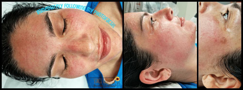 Photofacial Treatments LongIsland-Dermatology