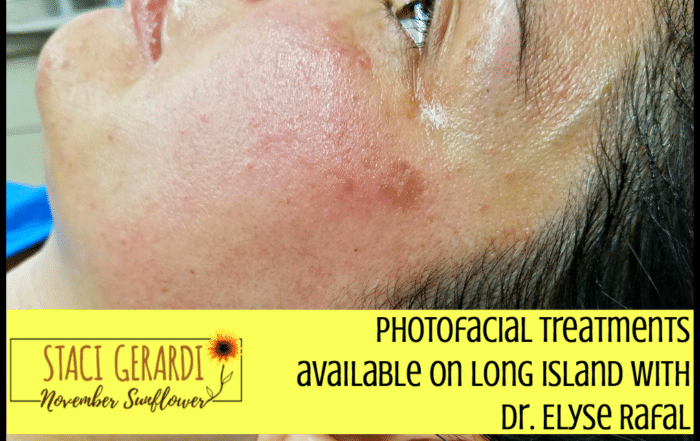 Photofacial treatments available on Long Island with Dr. Elyse Rafal