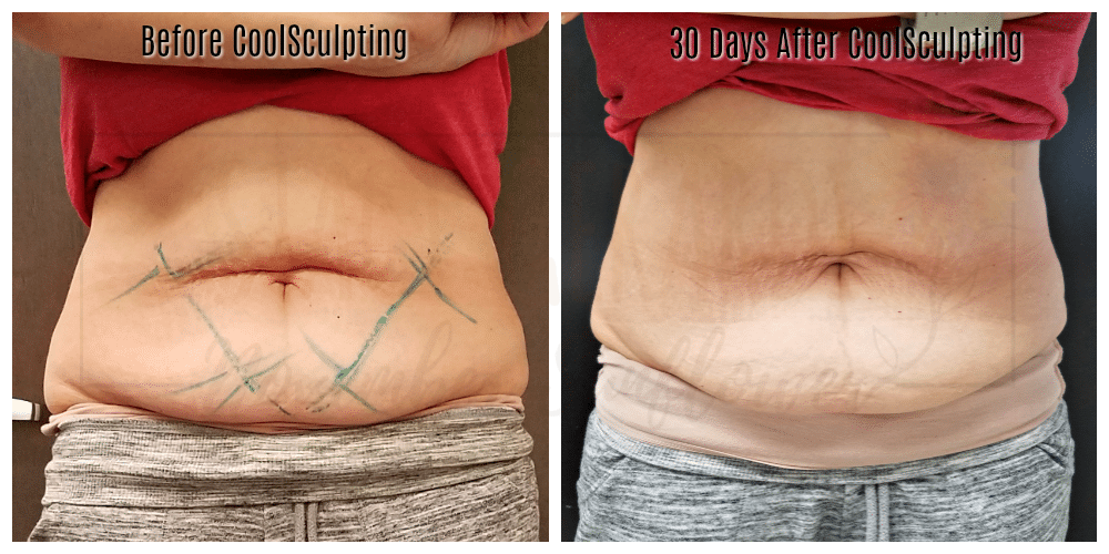 Stubborn fat removal with cool sculpting