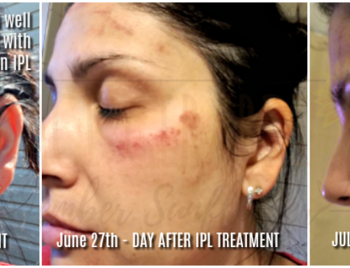 Treating skin well starts with photorejuvenation IPL