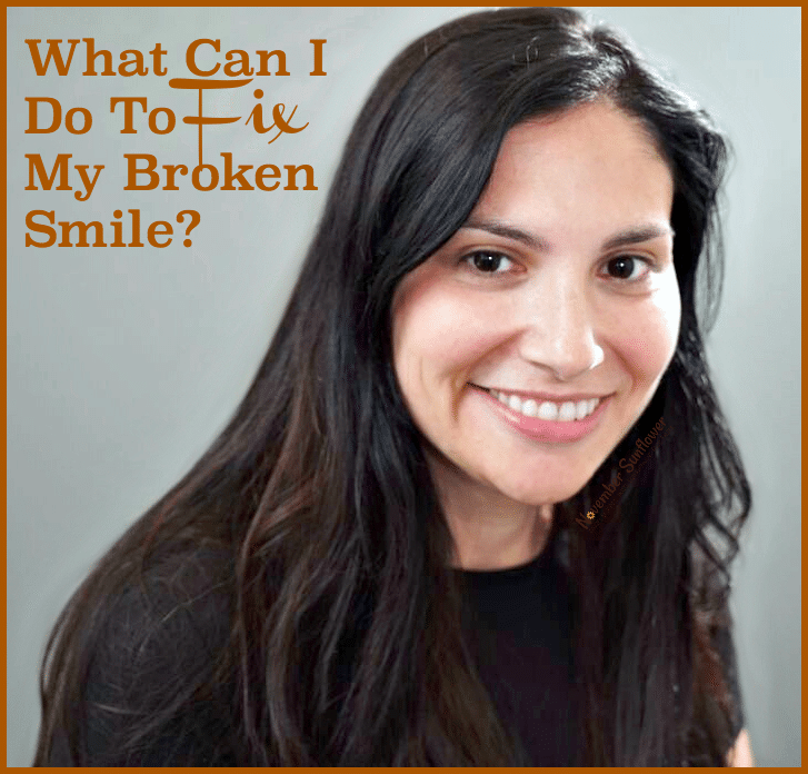 What Can I Do To Fix My Broken Smile? #dentalcare #smile