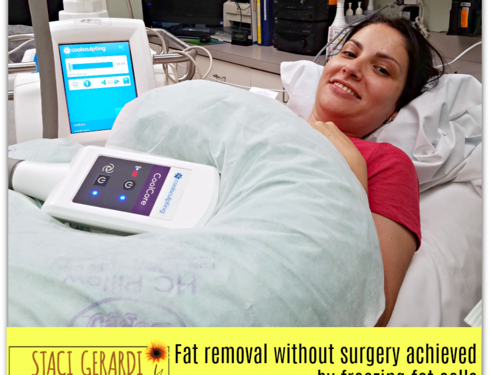 Fat removal without surgery achieved by freezing fat cells