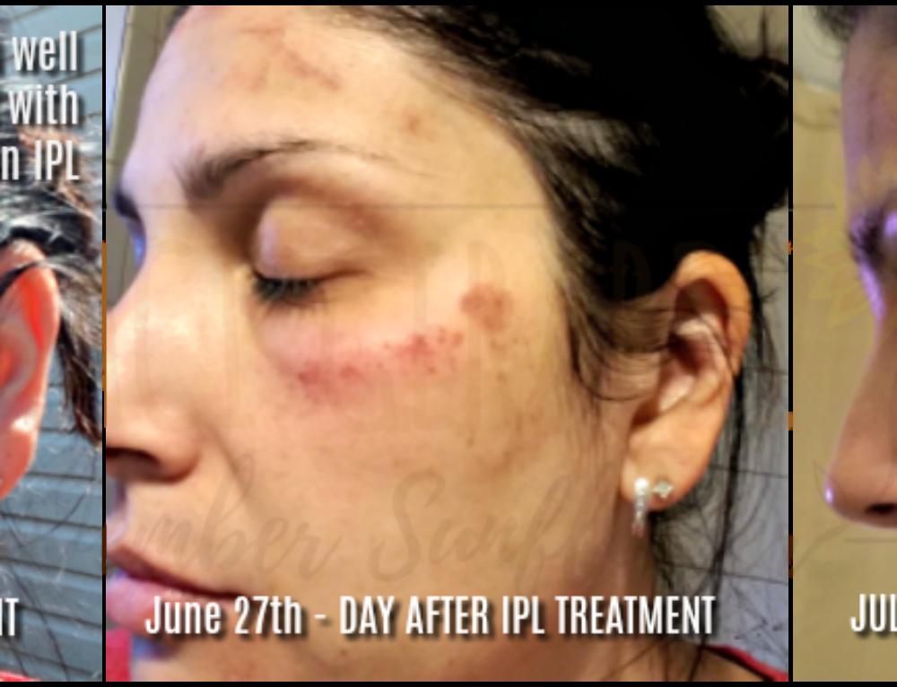 Treating skin well starts with photorejuvenation IPL
